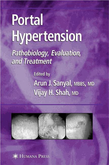 Portal Hypertension Pathobiology, Evaluation, and Treatment
