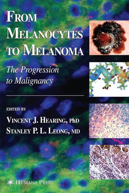 From Melanocytes to Melanoma The Progression to Malignancy
