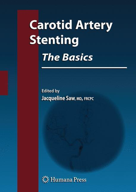Carotid Artery Stenting: The Basics