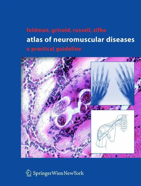 Atlas of Neuromuscular Diseases A Practical Guideline