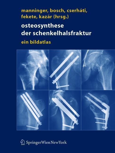 Osteosynthese der Schenkelhalsfraktur Ein Bildatlas