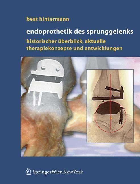 Endoprothetik des Sprunggelenks Historischer Überblick, aktuelle Therapiekonzepte und Entwicklungen