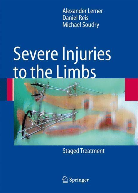 Severe Injuries to the Limbs Staged Treatment