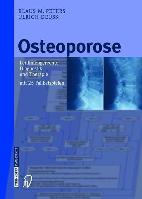 Osteoporose Leitliniengerechte Diagnostik und Therapie mit 25 Fallbeispielen