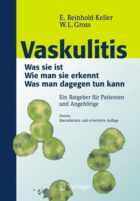 Vaskulitis Was ist sie - Wie man sie erkennt - Was man dagegen tun kann