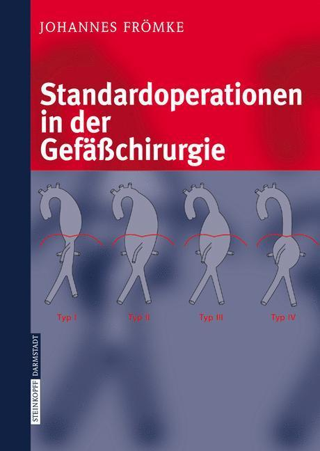 Standardoperationen in der Gefäßchirurgie